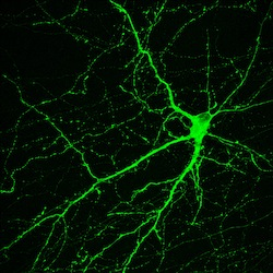 GFR labelled neuron. Image courtesy of Yan Liu and Su-Chun Zhang, Waisman Center