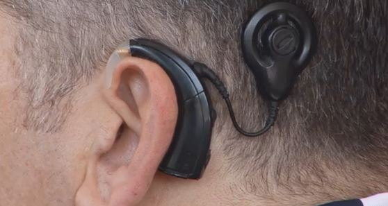 the features of the cochlear implant and issues related to it Issues related to vocabulary storage and retrieval will also be addressed for a general certificate of participation (no ceus) please download the cochlear certificate handout after registration.