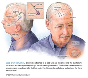 the history and description of the parkinsons disease Now we know a lot more about parkinson's disease symptoms and treatment  his essay contained clear descriptions of some  the history of parkinson's disease .