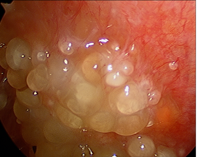 Peritoneal Carcinosis viewed by laparoscopy. Image: www.cancersurgery.us