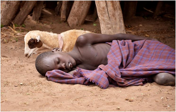 Malaria patient in Ethiopia