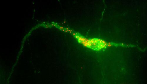 A GnRH neuron present in the hypothalamus.